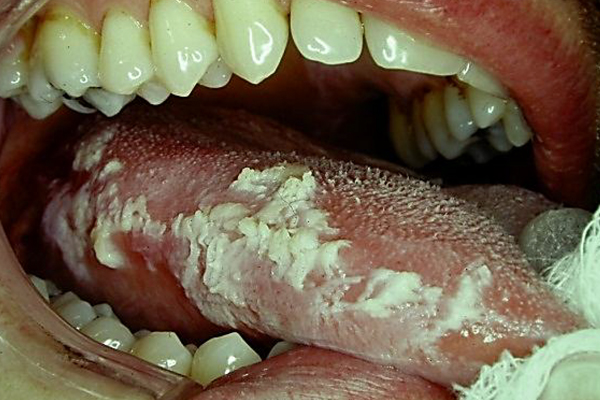 Five Top Halloween Dental Frights and Oral Horrors | DOCS ...