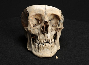 A 19th-century skull with tooth abscesses