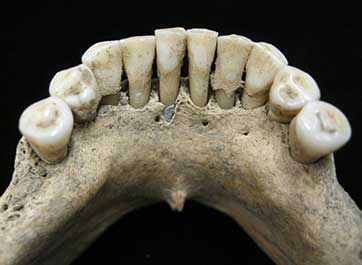 a discovery in the skeletal teeth of a nun who lived during medieval times