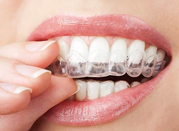 Do-It-Yourself Teeth Whitening
