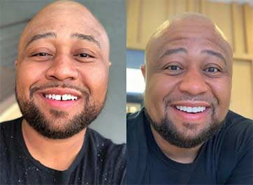 "A ""Before"" and ""After"" photo from the SmileDirectClub website."