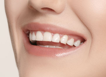 Restoring the High Lip Line Gummy Smile with Porcelain Veneers and Improved Communication
