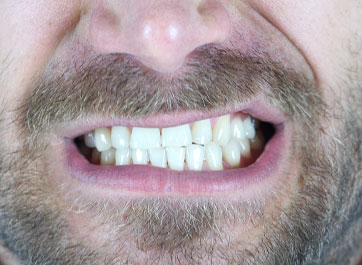 Broken Teeth and Dental Emergencies: Bruxism on The Rise in 2020