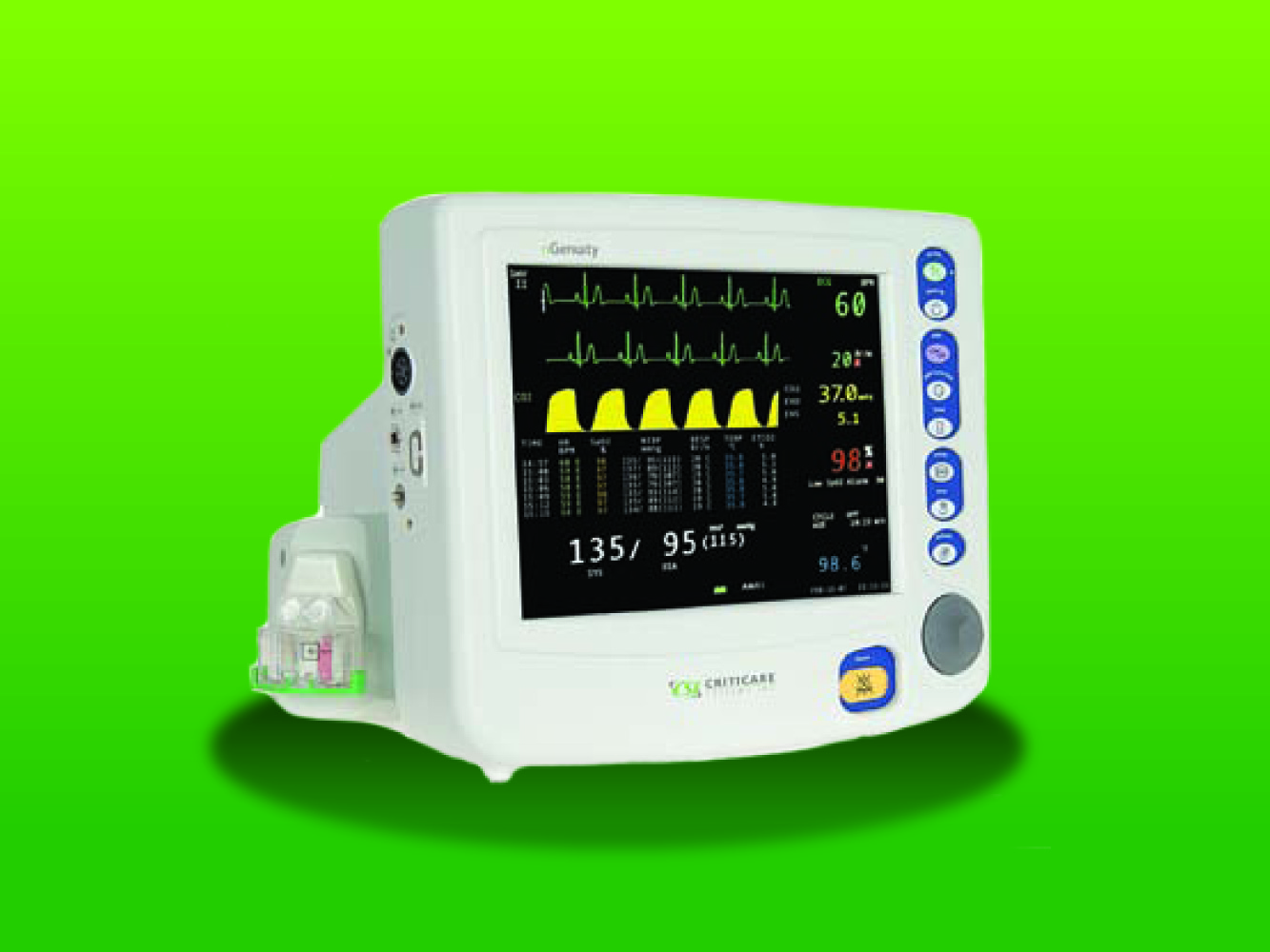 Secure patient safety, sedation success with industry-leading vital signs monitor