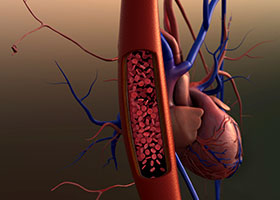 Root Tip Infections May Contribute to Heart Disease