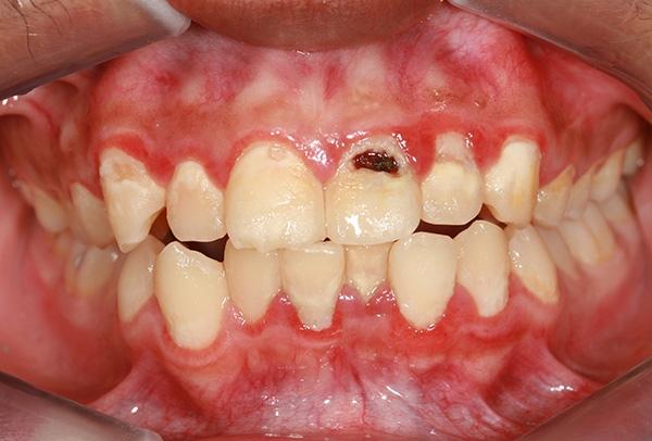 Only emotional, Oral cancer teeth