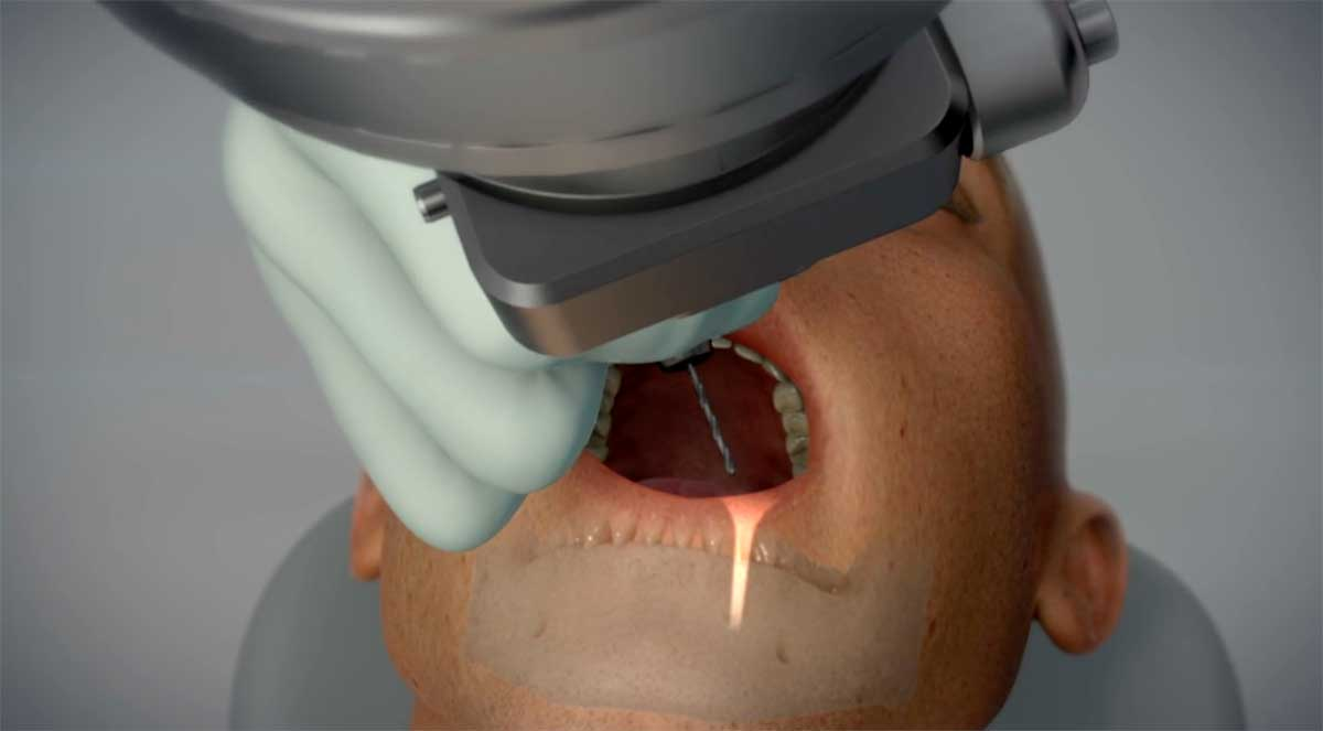 Yomi, from Neocis, is the world's first robot-assisted dental surgical system.