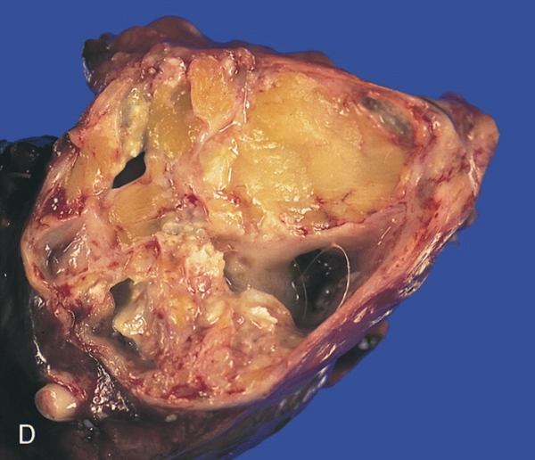 Tumors with Teeth: The Terrifying Teratoma